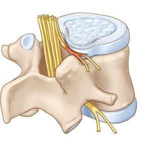 Chèn ép dây thần kinh - triệu chứng và phương pháp điều trị