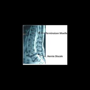 Phát hiện bất thường qua chẩn đoán hình ảnh cột sống