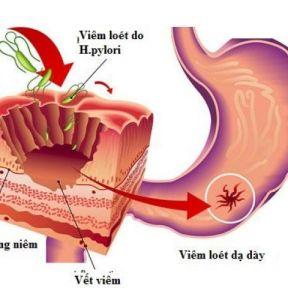 Tìm hiểu chi tiết về bệnh viêm dạ dày