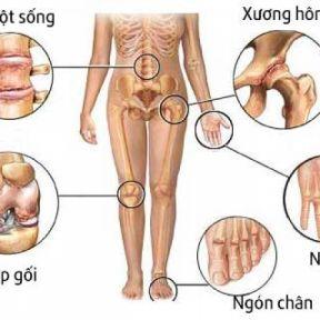 Tìm hiểu triệu chứng thực thể bệnh cơ xương khớp